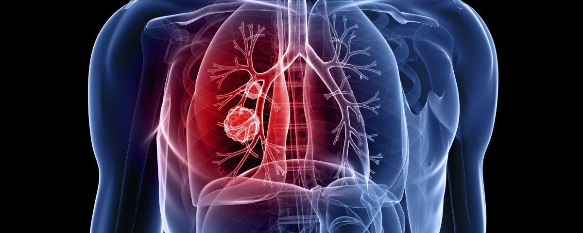 tractament cancer de pulmo