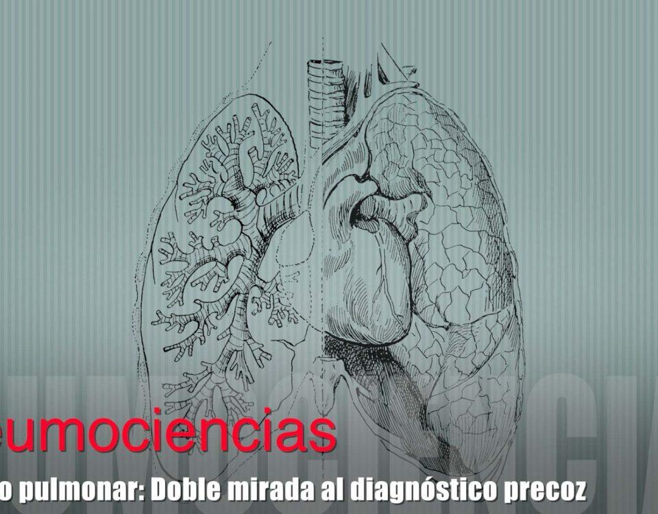 nodulo pulmonar diagnostico precoz