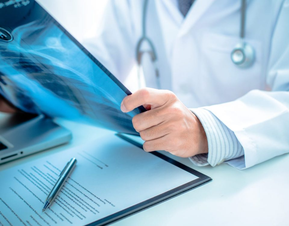 cancer de pulmon neumologo jordi rogi cutillas