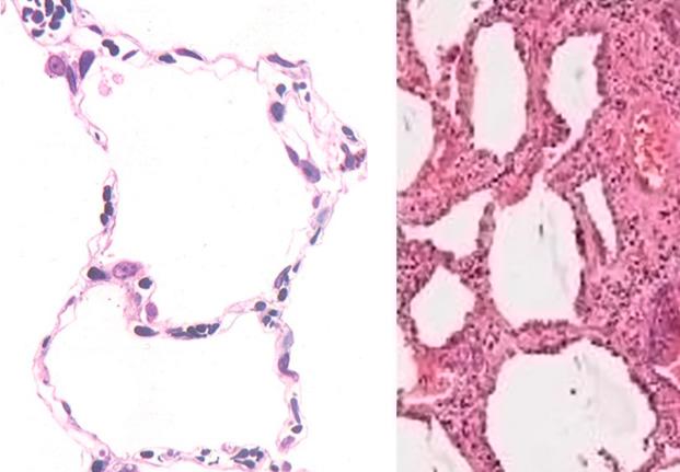 Fibrosis Pulmonar Albeolos normales vs Albeolos con FPI