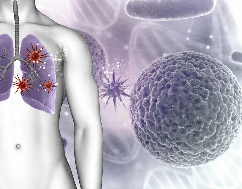 relacion cancer de pulmon bacterias
